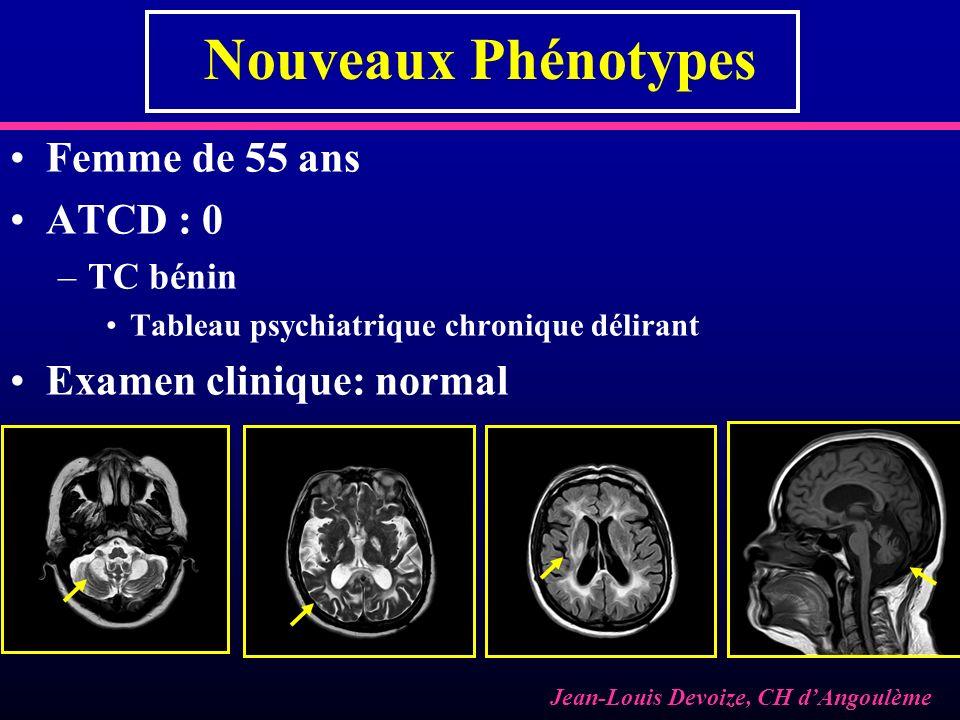 Nouveaux Phénotypes Femme de 55 ans ATCD : 0 Examen clinique: normal