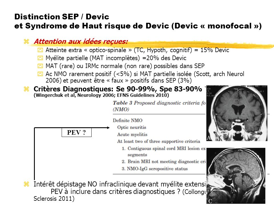 Distinction SEP / Devic et Syndrome de Haut risque de Devic (Devic « monofocal »)