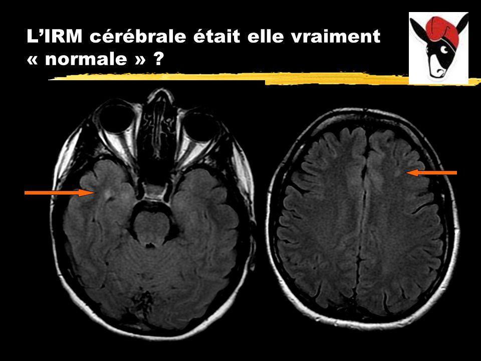 L'IRM cérébrale était elle vraiment « normale »