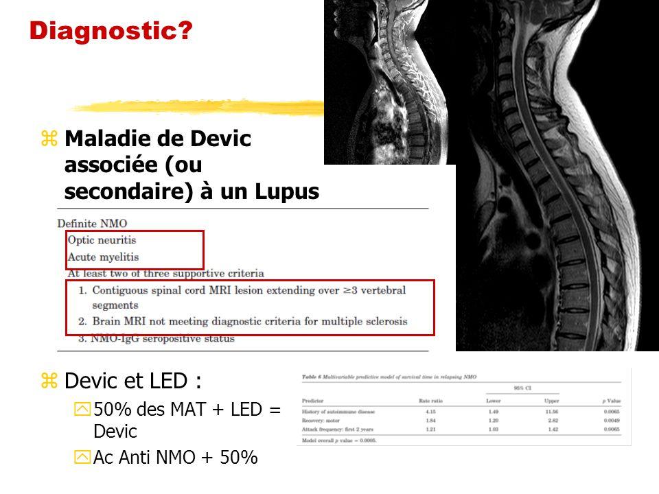 Diagnostic Maladie de Devic associée (ou secondaire) à un Lupus