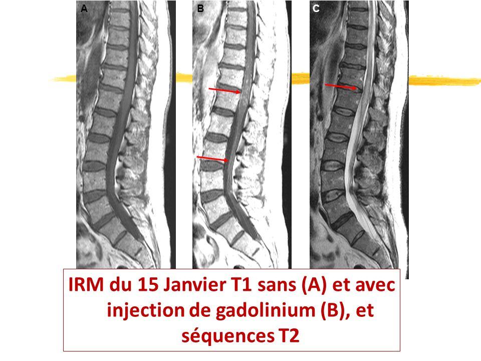 A B C IRM du 15 Janvier T1 sans (A) et avec injection de gadolinium (B), et séquences T2