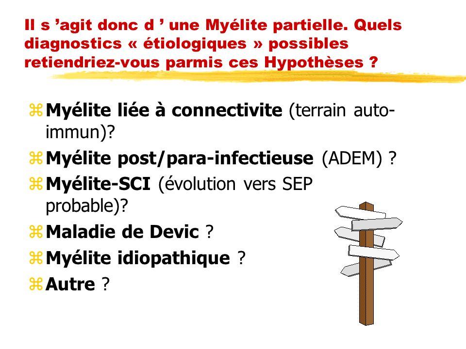 Myélite liée à connectivite (terrain auto-immun)