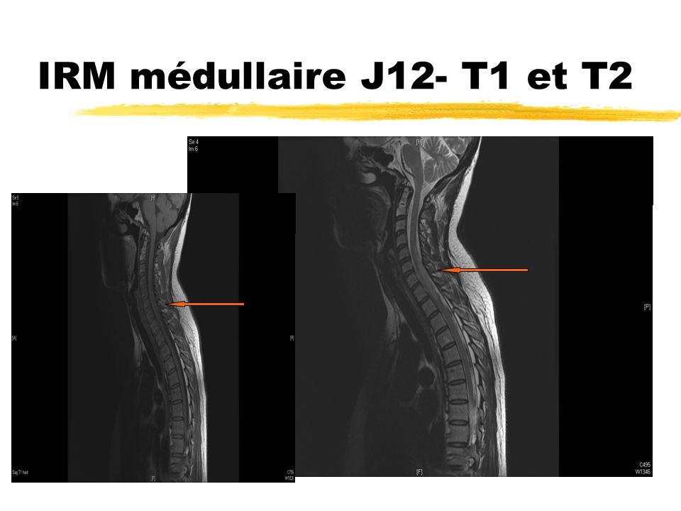 IRM médullaire J12- T1 et T2