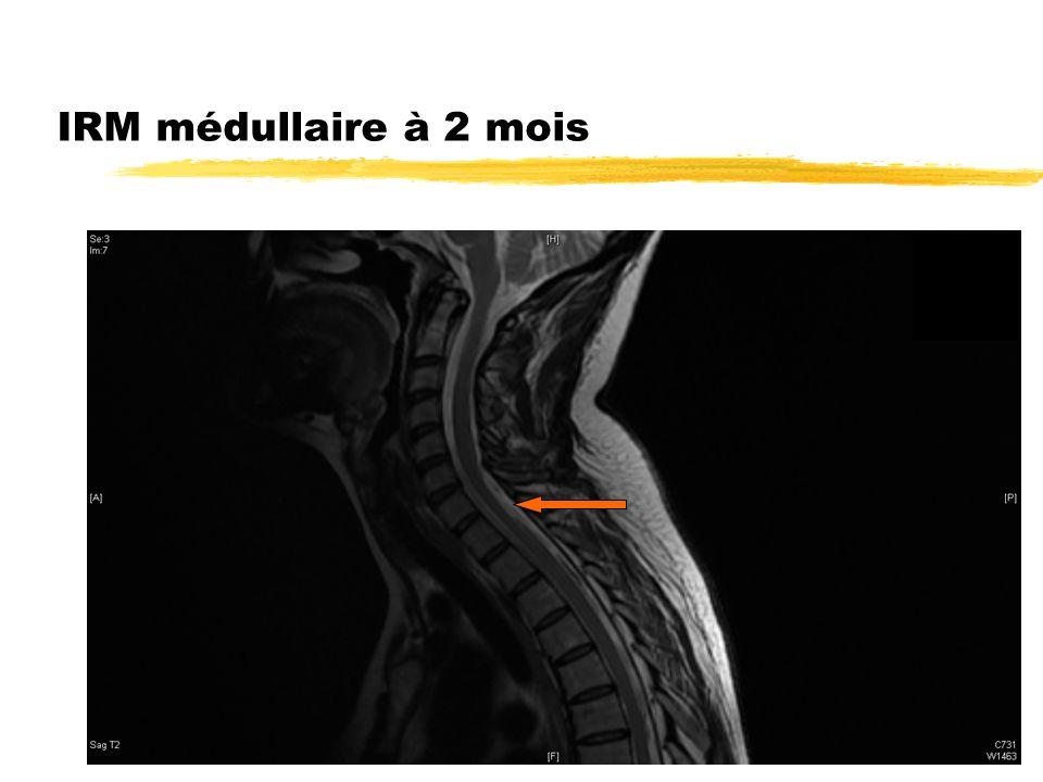 IRM médullaire à 2 mois