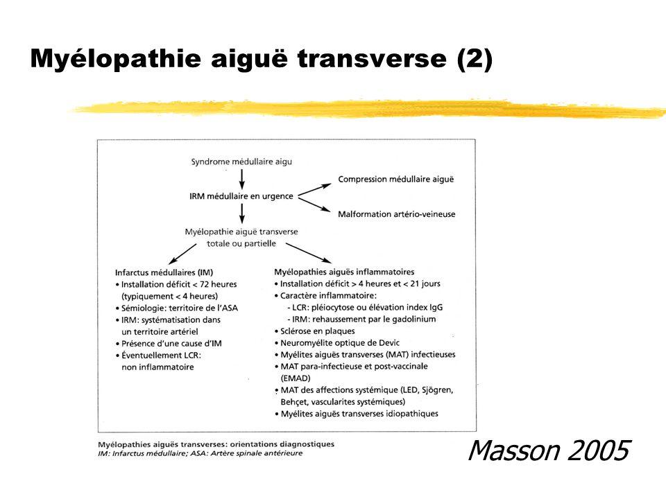 Myélopathie aiguë transverse (2)