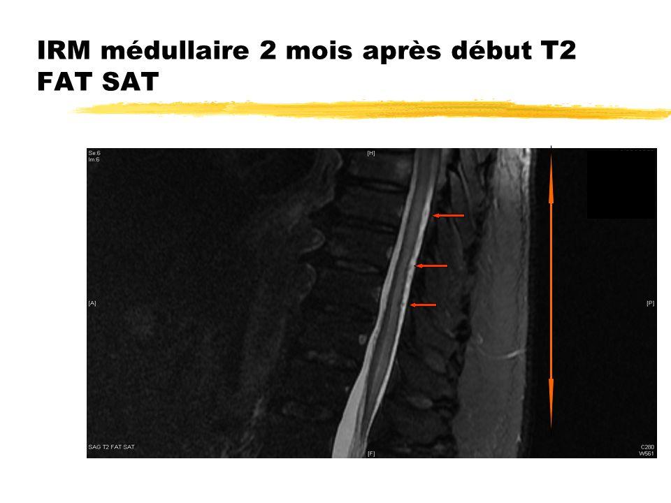 IRM médullaire 2 mois après début T2 FAT SAT