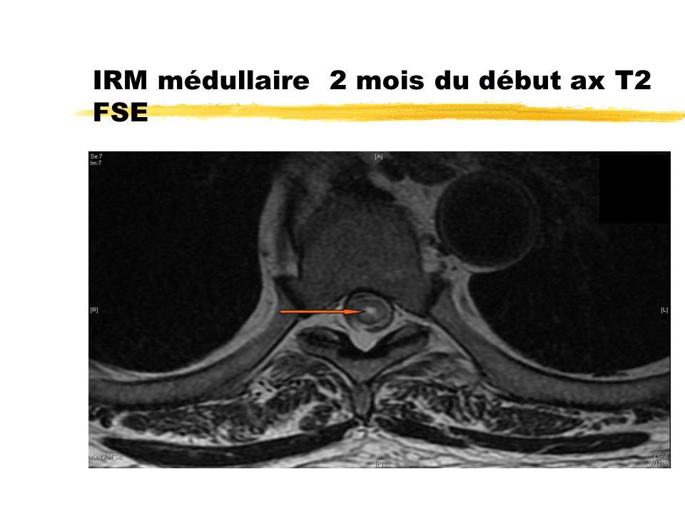 IRM médullaire 2 mois du début ax T2 FSE