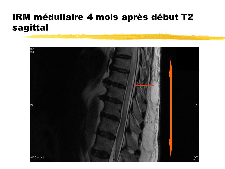 IRM médullaire 4 mois après début T2 sagittal