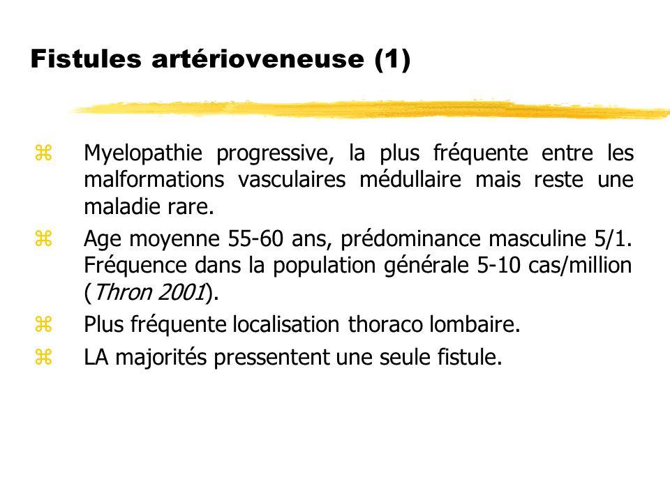 Fistules artérioveneuse (1)