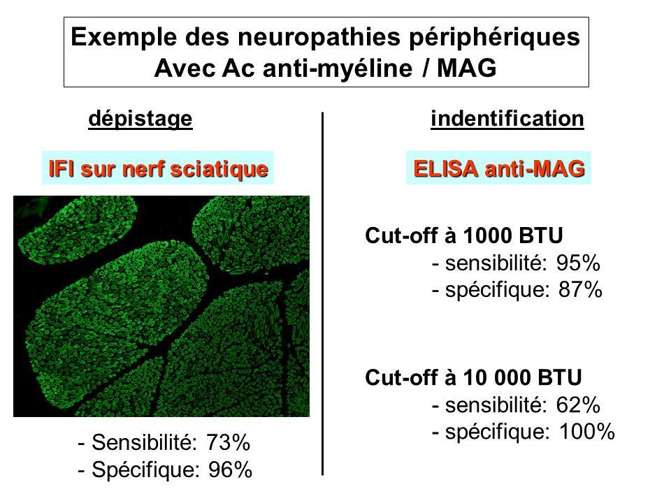Exemple des neuropathies périphériques Avec Ac anti-myéline / MAG