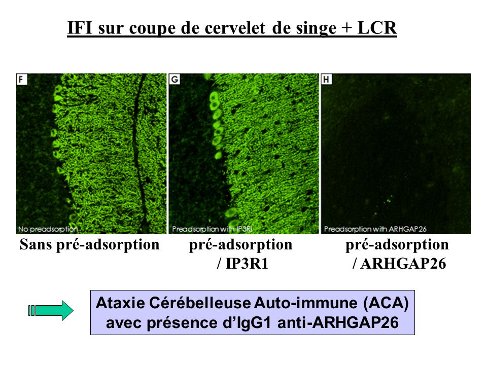 IFI sur coupe de cervelet de singe + LCR