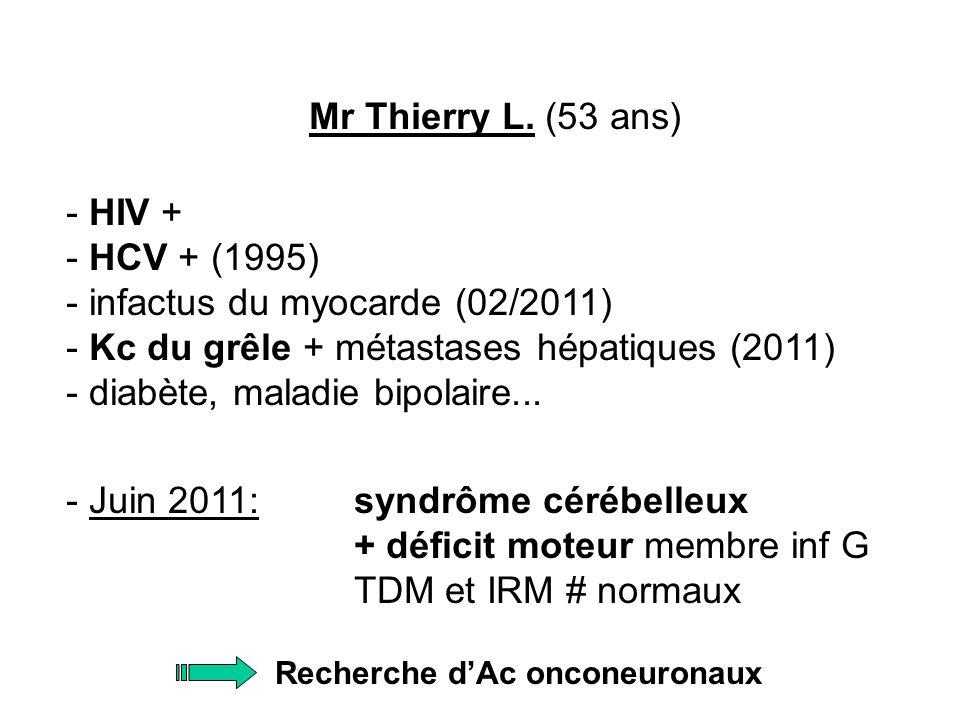 Recherche d'Ac onconeuronaux