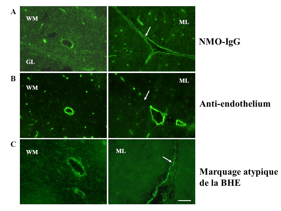 NMO-IgG Anti-endothelium Marquage atypique de la BHE A B C WM ML GL ML