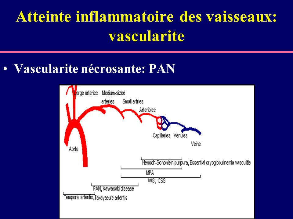 Atteinte inflammatoire des vaisseaux: vascularite