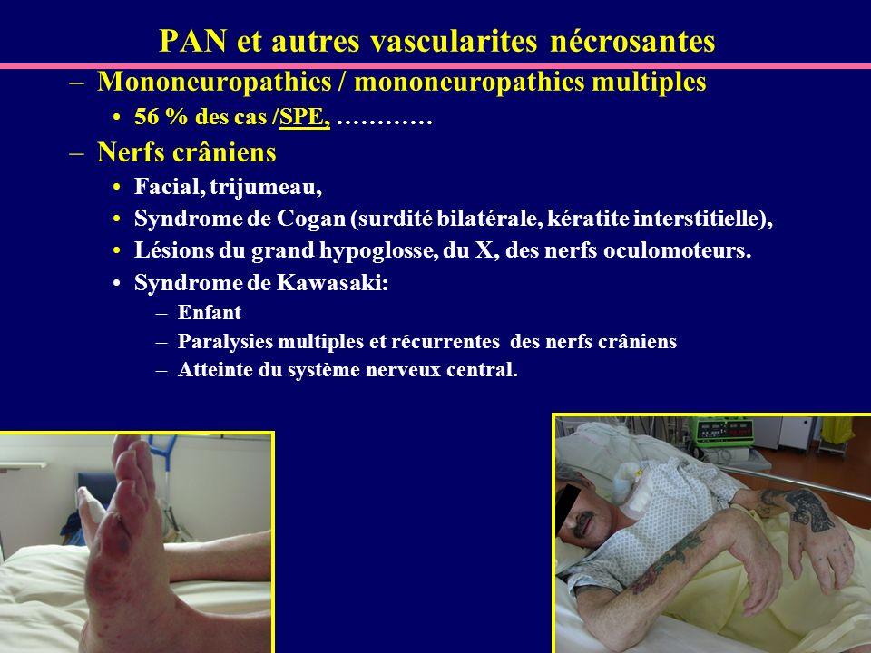 PAN et autres vascularites nécrosantes