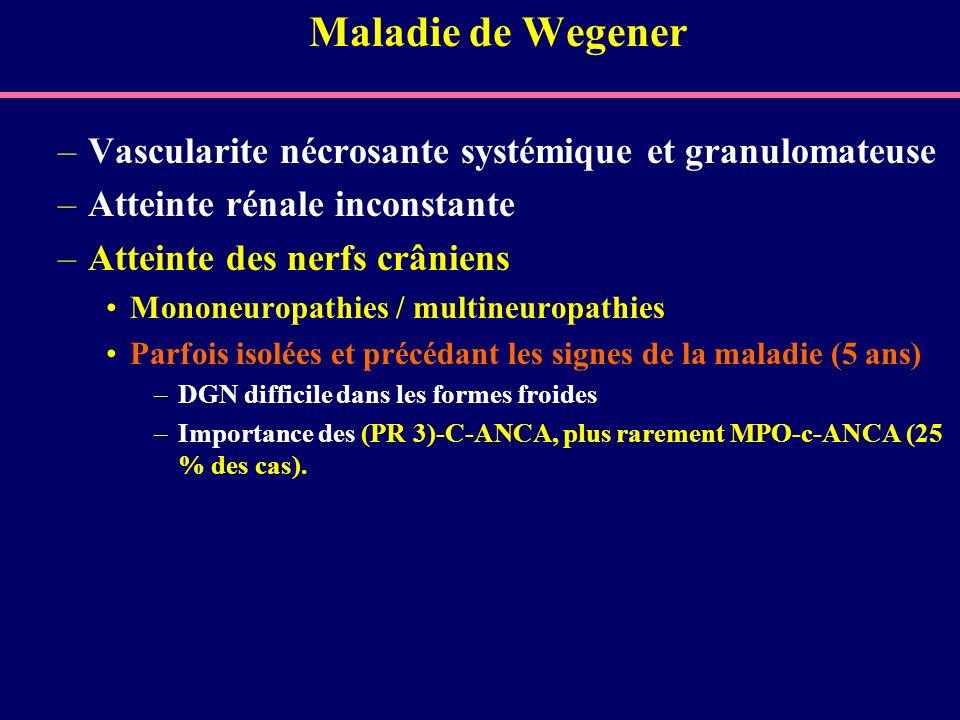 Maladie de Wegener Vascularite nécrosante systémique et granulomateuse
