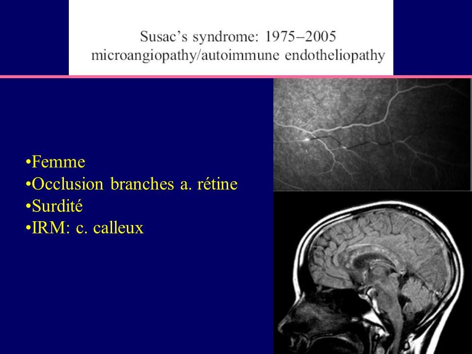 Femme Occlusion branches a. rétine Surdité IRM: c. calleux