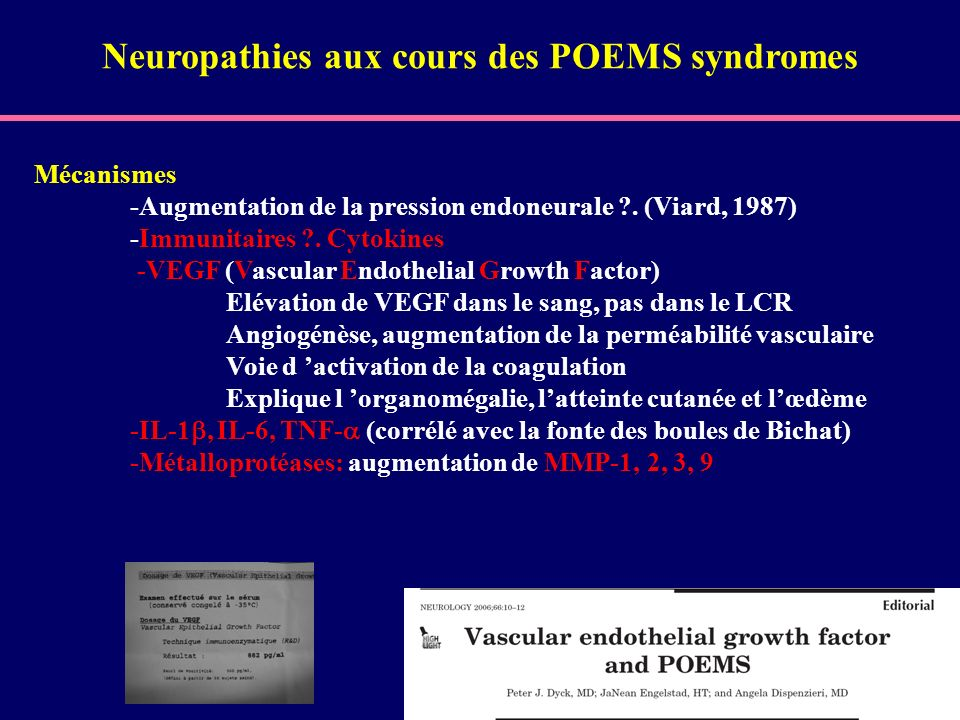 Neuropathies aux cours des POEMS syndromes