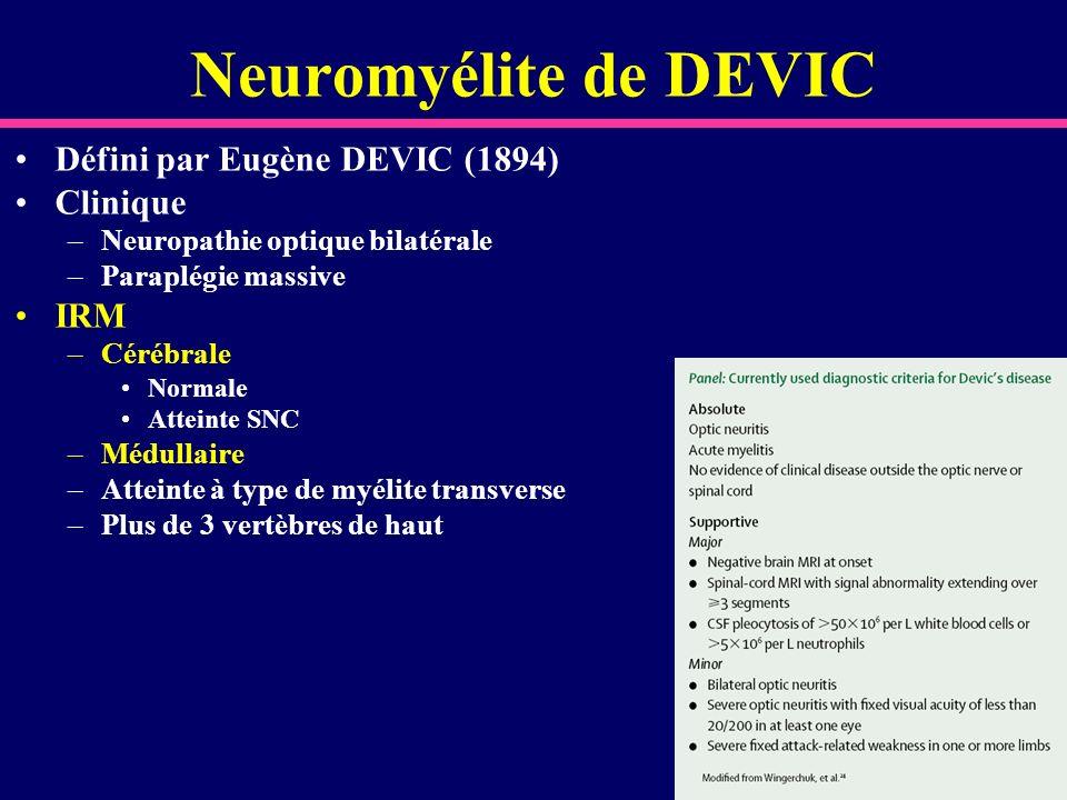 Neuromyélite de DEVIC Défini par Eugène DEVIC (1894) Clinique IRM