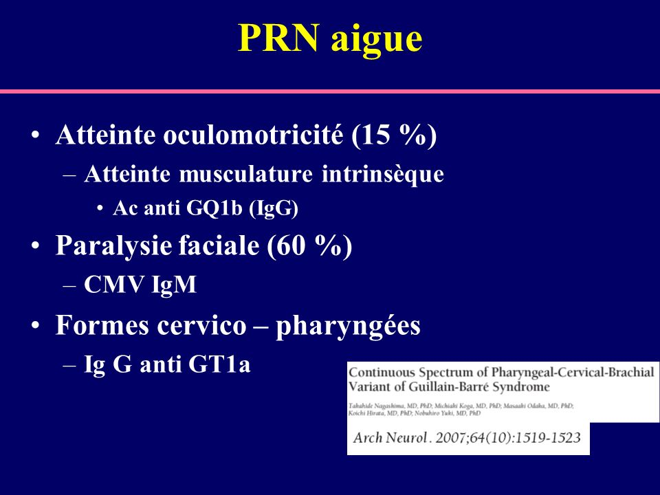 PRN aigue Atteinte oculomotricité (15 %) Paralysie faciale (60 %)