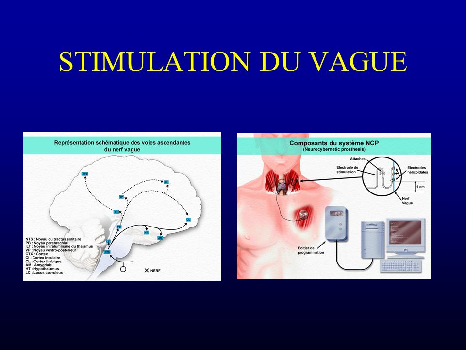 STIMULATION DU VAGUE