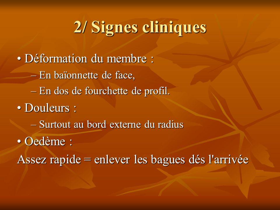 2/ Signes cliniques • Déformation du membre : • Douleurs : • Oedème :