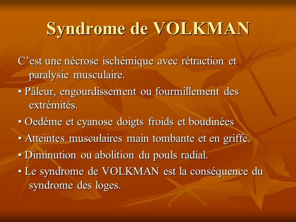 Syndrome de VOLKMAN C'est une nécrose ischémique avec rétraction et paralysie musculaire. • Pâleur, engourdissement ou fourmillement des extrémités.