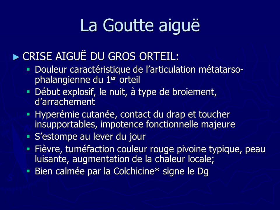 La Goutte aiguë CRISE AIGUË DU GROS ORTEIL: