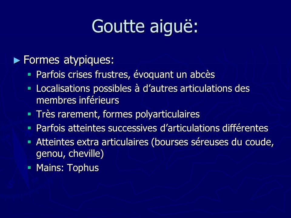 Goutte aiguë: Formes atypiques: