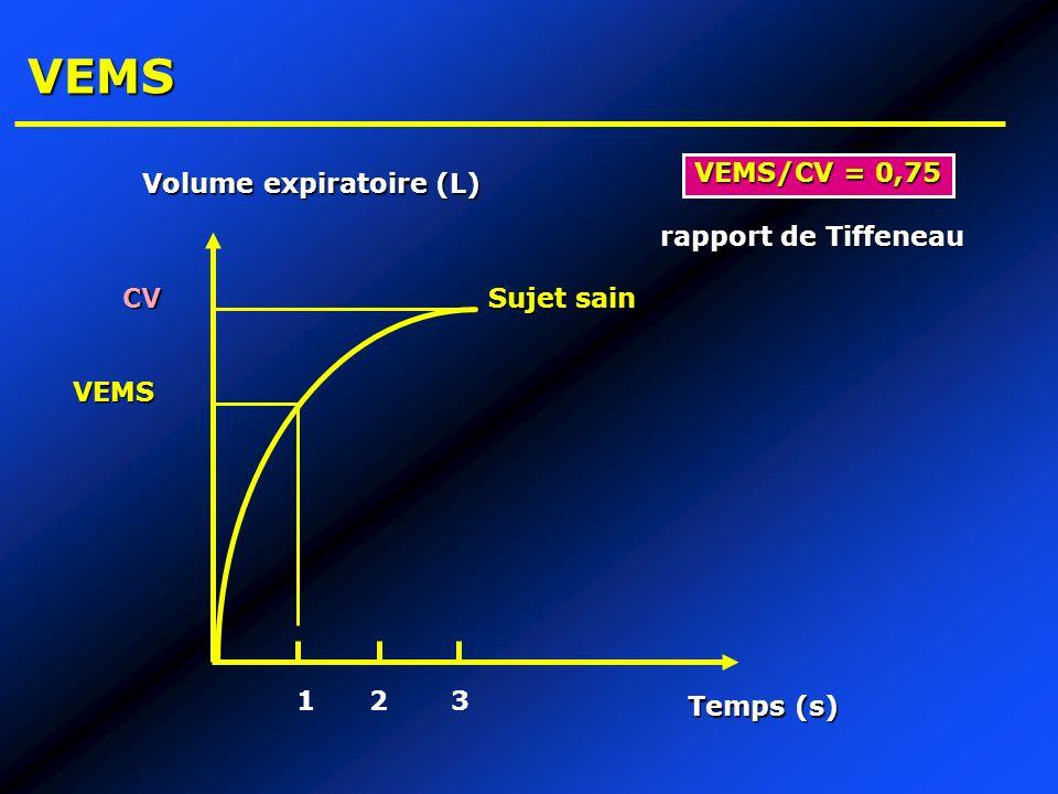 VEMS VEMS/CV = 0,75 Volume expiratoire (L) rapport de Tiffeneau CV