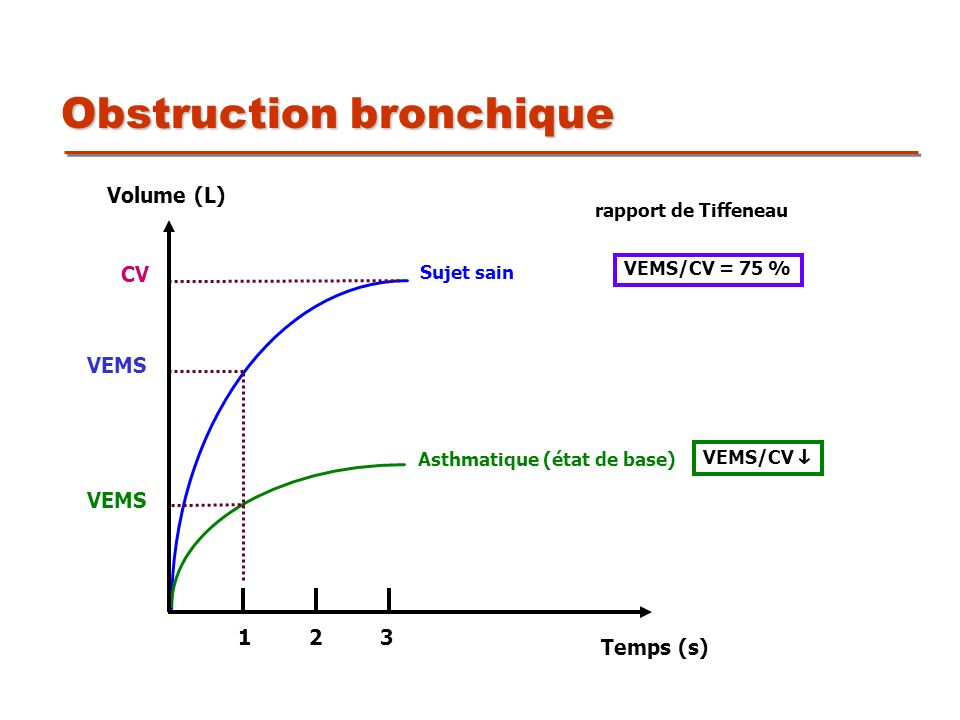Obstruction bronchique