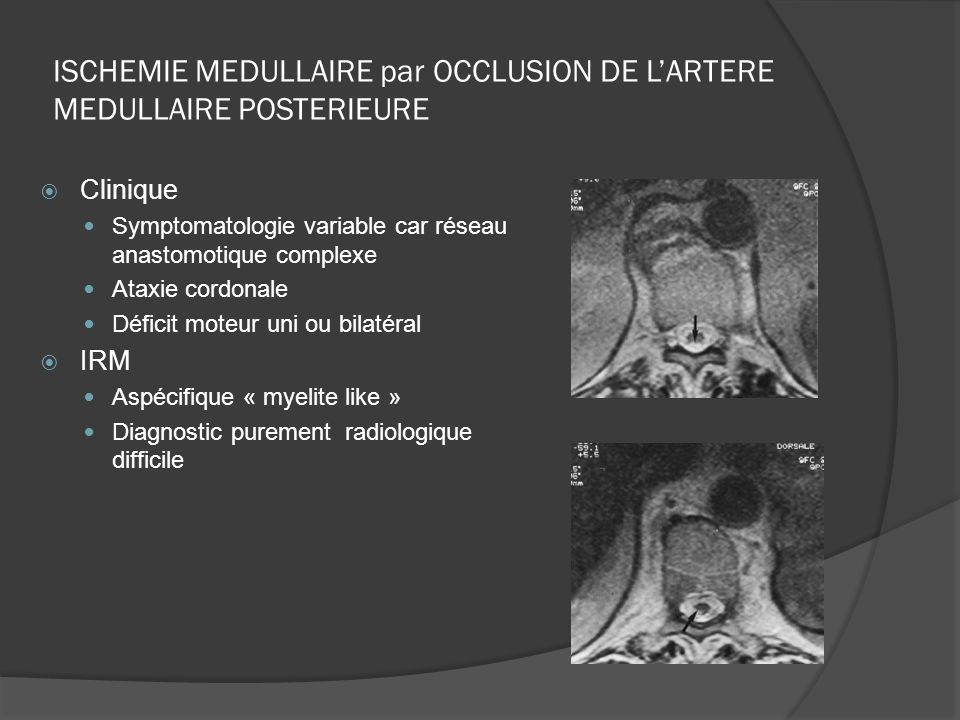 ISCHEMIE MEDULLAIRE par OCCLUSION DE L'ARTERE MEDULLAIRE POSTERIEURE