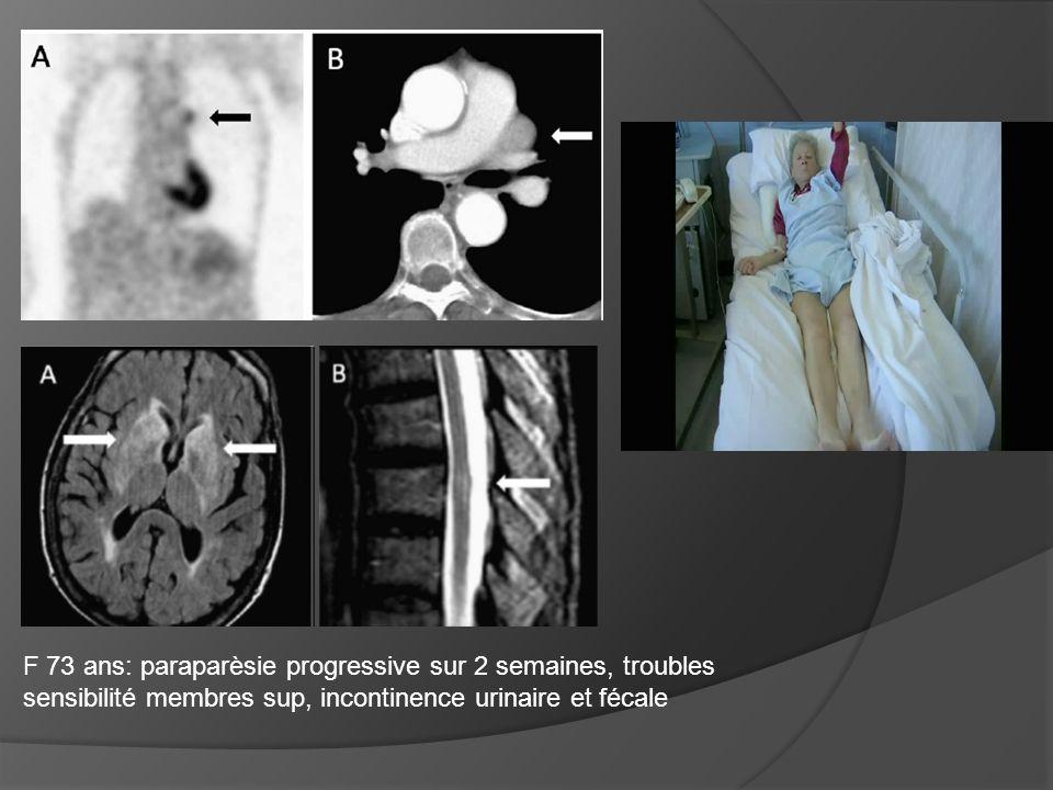 F 73 ans: paraparèsie progressive sur 2 semaines, troubles sensibilité membres sup, incontinence urinaire et fécale
