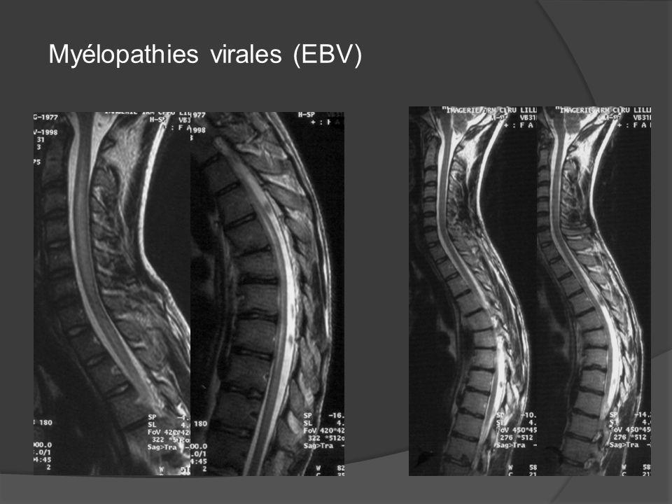 Myélopathies virales (EBV)