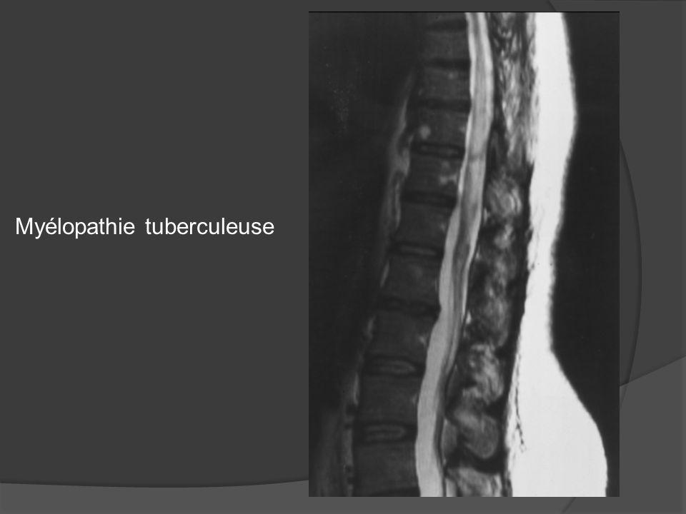 Myélopathie tuberculeuse
