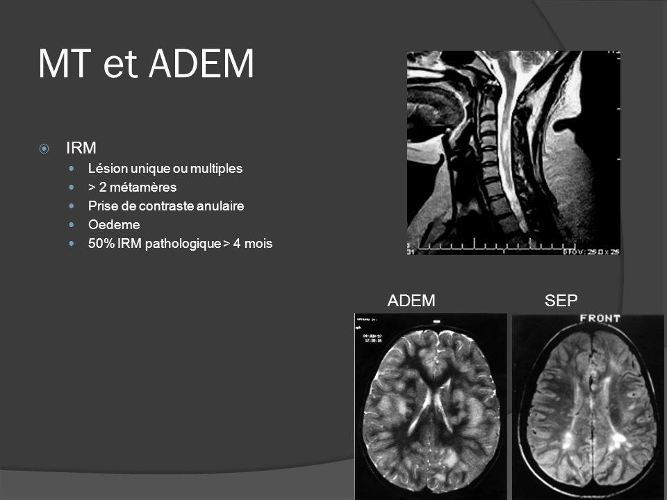 MT et ADEM IRM ADEM SEP Lésion unique ou multiples > 2 métamères