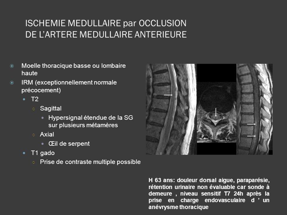 ISCHEMIE MEDULLAIRE par OCCLUSION DE L'ARTERE MEDULLAIRE ANTERIEURE