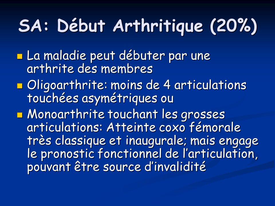 SA: Début Arthritique (20%)