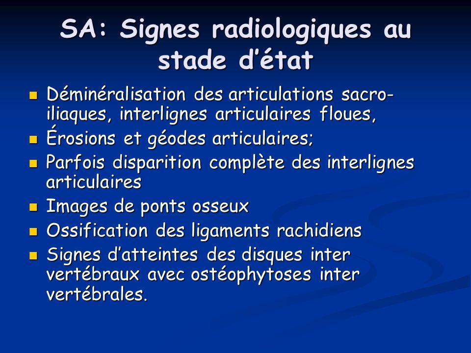 SA: Signes radiologiques au stade d'état