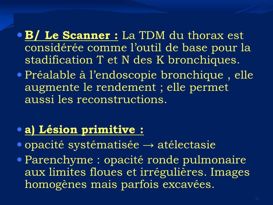 B/ Le Scanner : La TDM du thorax est considérée comme l'outil de base pour la stadification T et N des K bronchiques.