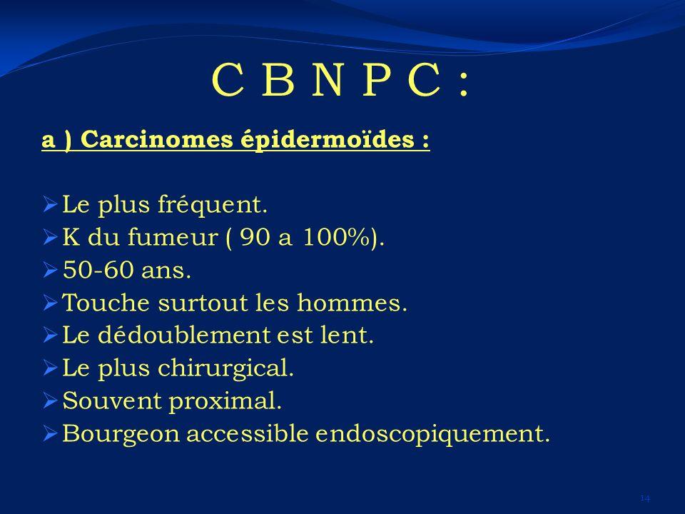 C B N P C : a ) Carcinomes épidermoïdes : Le plus fréquent.