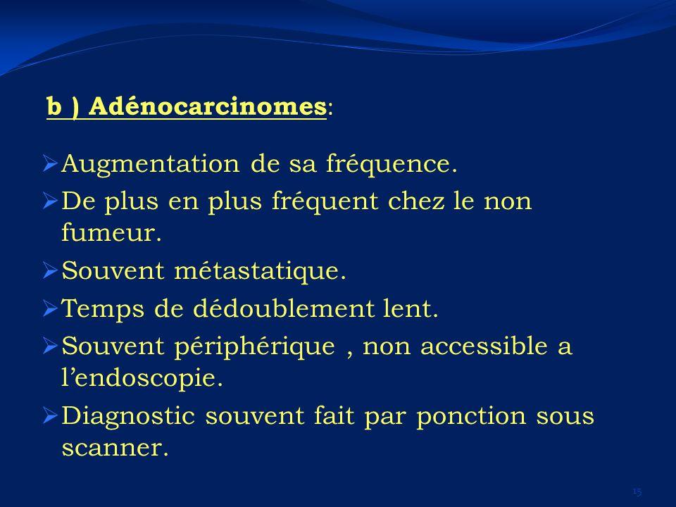 b ) Adénocarcinomes: Augmentation de sa fréquence. De plus en plus fréquent chez le non fumeur. Souvent métastatique.