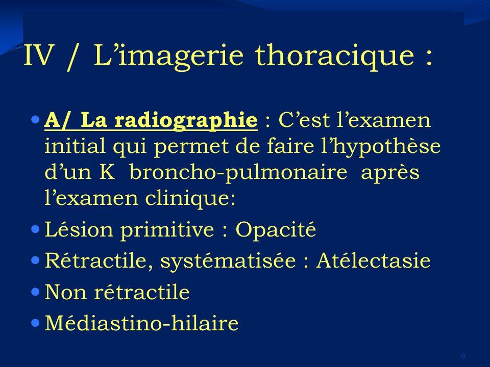 IV / L'imagerie thoracique :