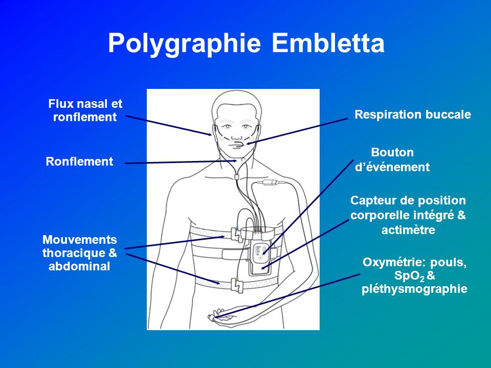 Polygraphie Embletta Flux nasal et ronflement Respiration buccale