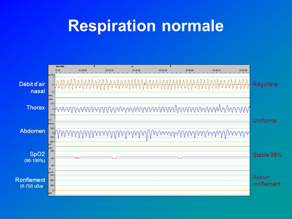 Respiration normale Débit d'air nasal Régulière Thorax Uniforme