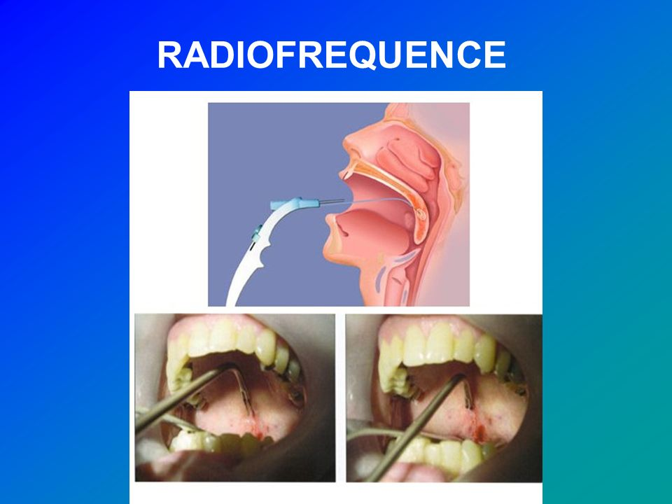 RADIOFREQUENCE