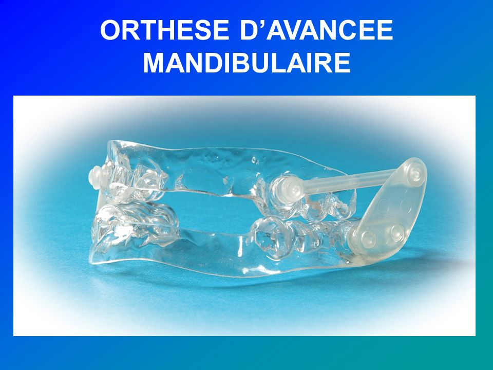 ORTHESE D'AVANCEE MANDIBULAIRE