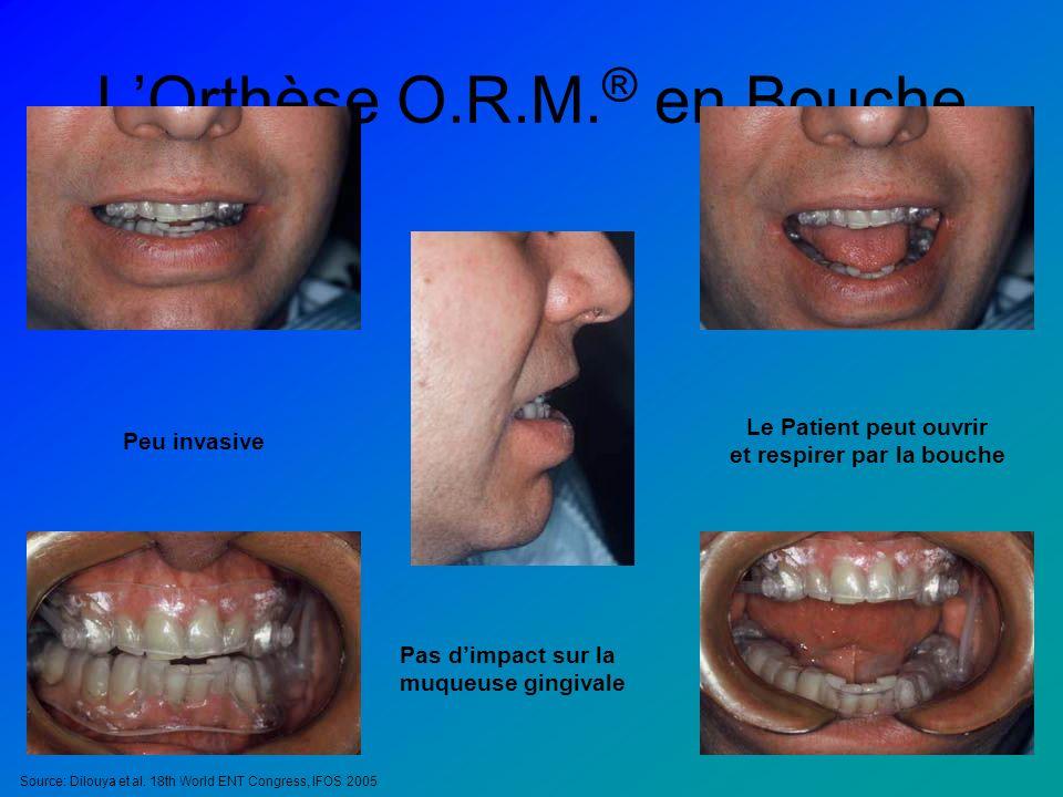 L'Orthèse O.R.M.® en Bouche