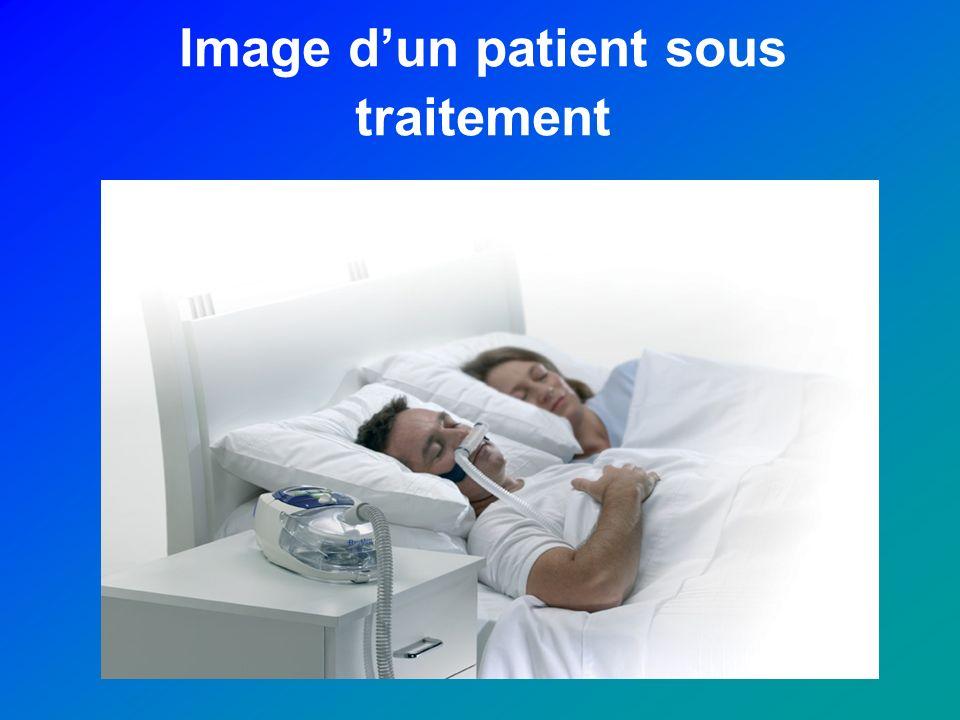 Image d'un patient sous traitement