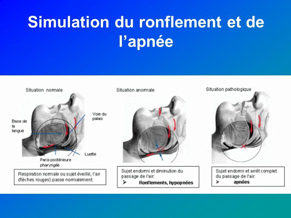 Simulation du ronflement et de l'apnée